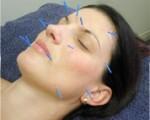 Cosmetic Acupunture & Facial Rejuvenation Brisbane